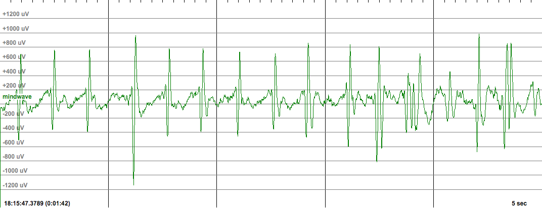 Epihunter headset EEG example